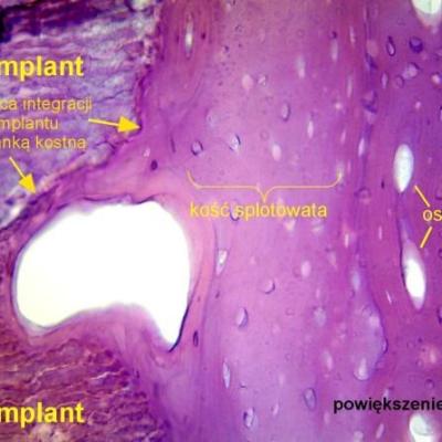 miejce integracji implantu z tkanką kostną